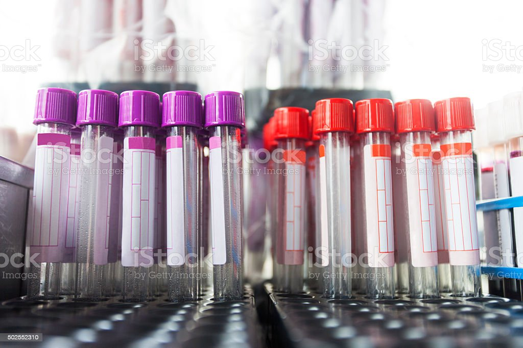 Blood test - sample stock photo