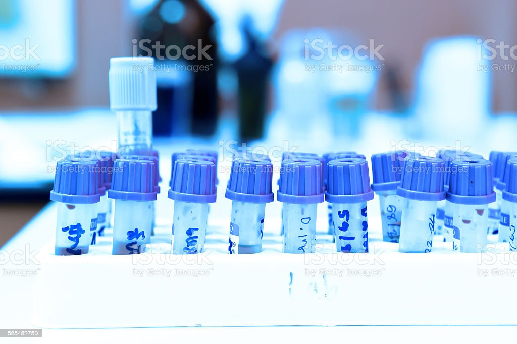 blood testing in laboratory stock photo