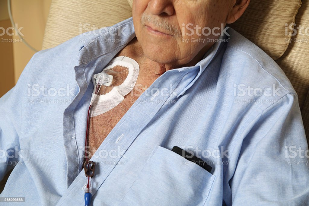 Blood Transfusion through Chest Port stock photo
