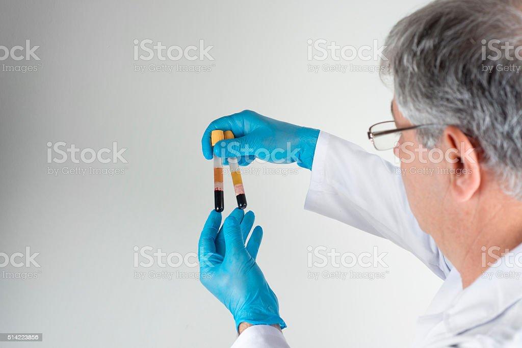 Blood tube for testing in laboratory. stock photo