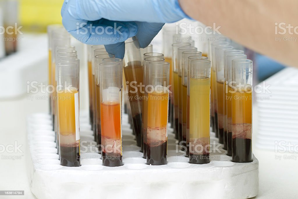 Blood tubes at the microbiology laboratory royalty-free stock photo