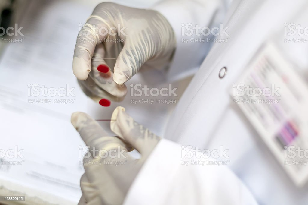 Bloodtest stock photo