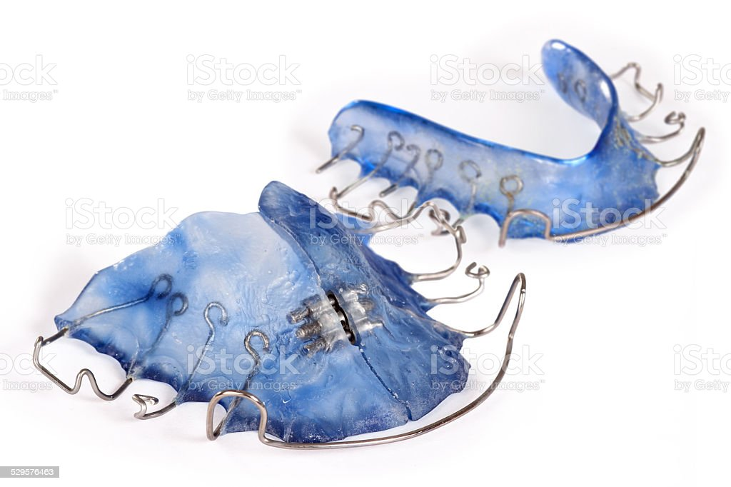 Blue dental brace, orthodontia stock photo