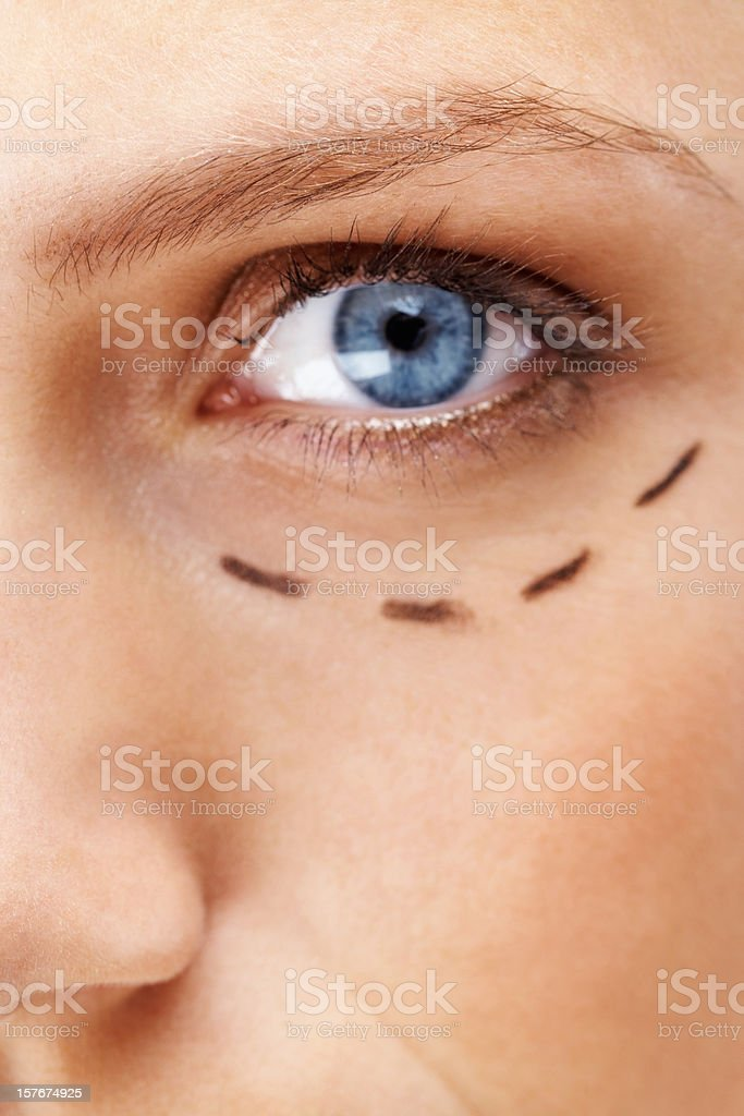 Blue eyed woman with markings below eye before plastic surgery royalty-free stock photo
