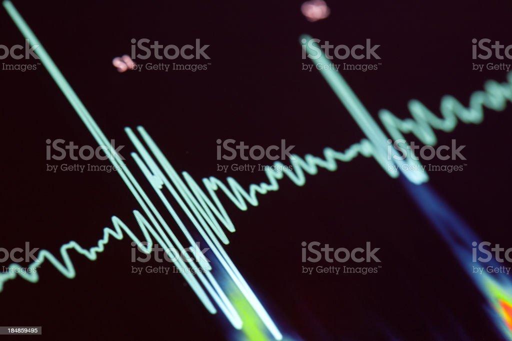 A blue heartbeat trace on a screen stock photo
