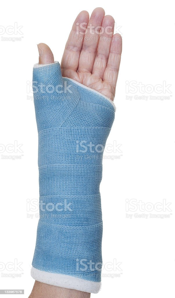 Blue resin cast on injured wrist stock photo