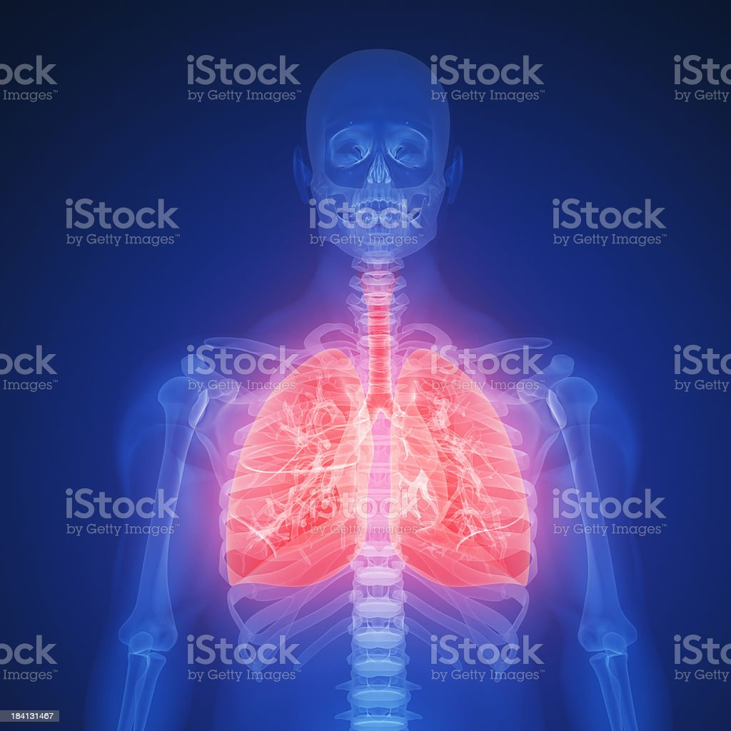 Blue X-ray silhouette of lung infection with red highlights stock photo