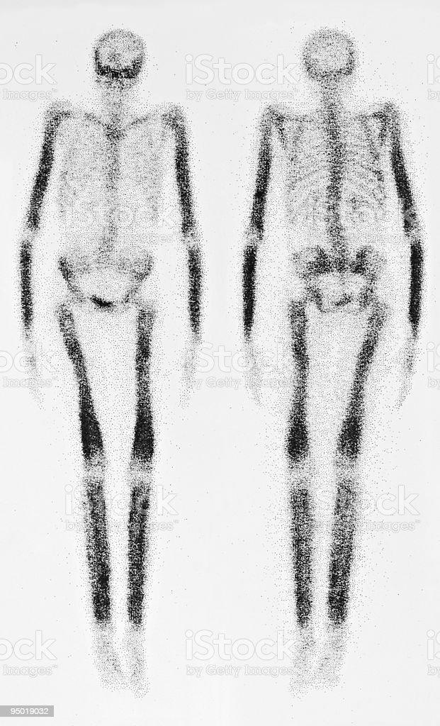 Bone Scan royalty-free stock photo
