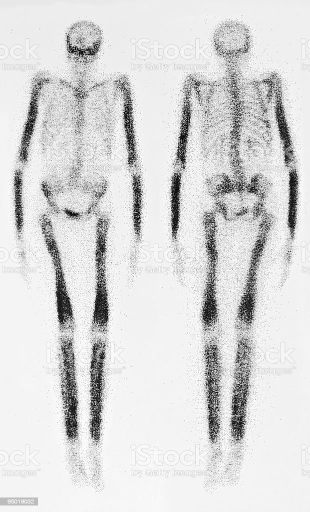 Bone Scan stock photo
