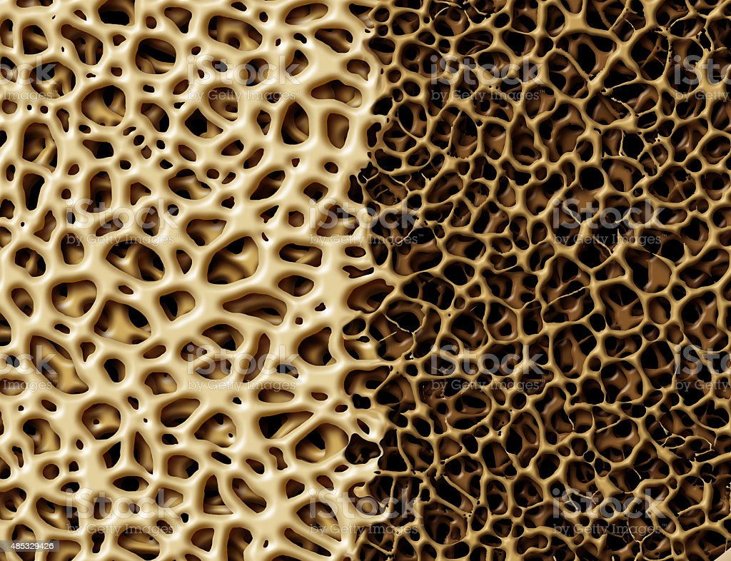 Bone With Osteoperosis stock photo