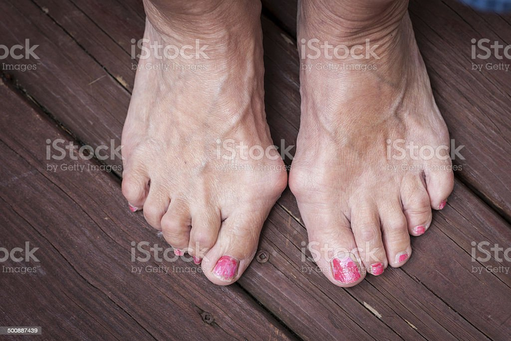 Bony bunions on both feet stock photo