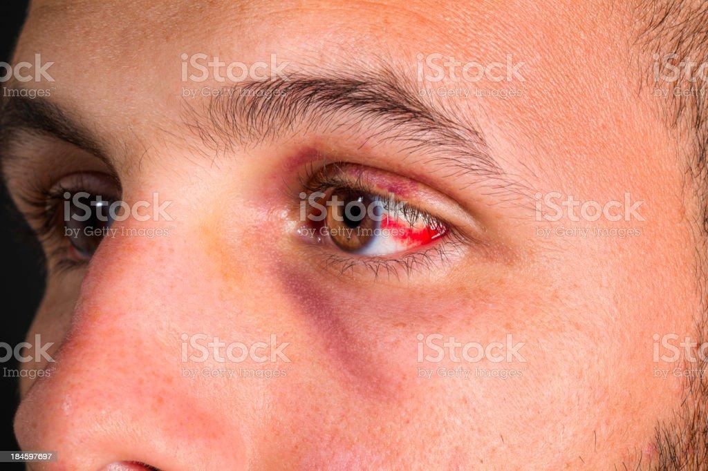 Boodshot eye stock photo