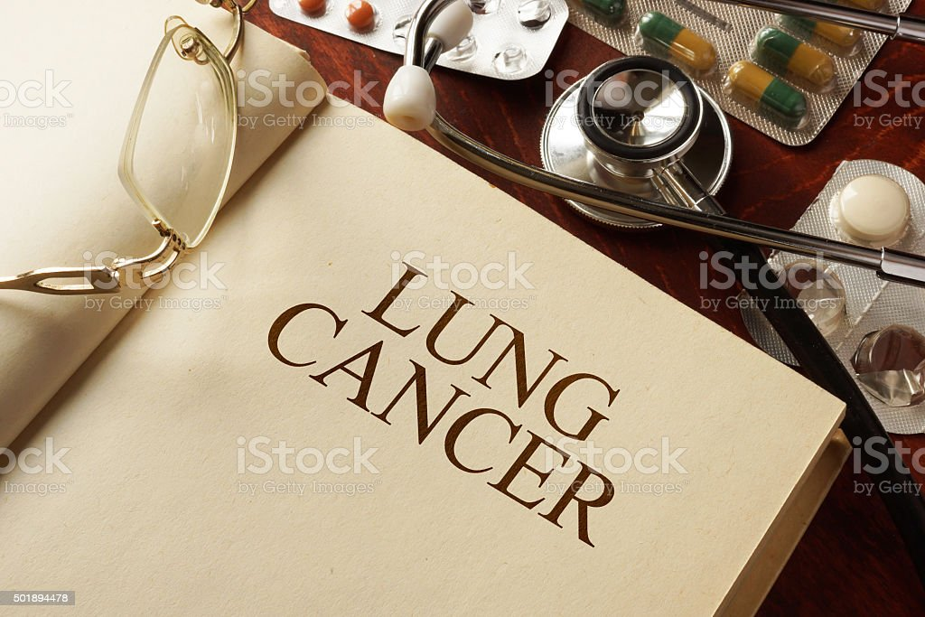 Book with diagnosis lung cancer. Medic concept. stock photo
