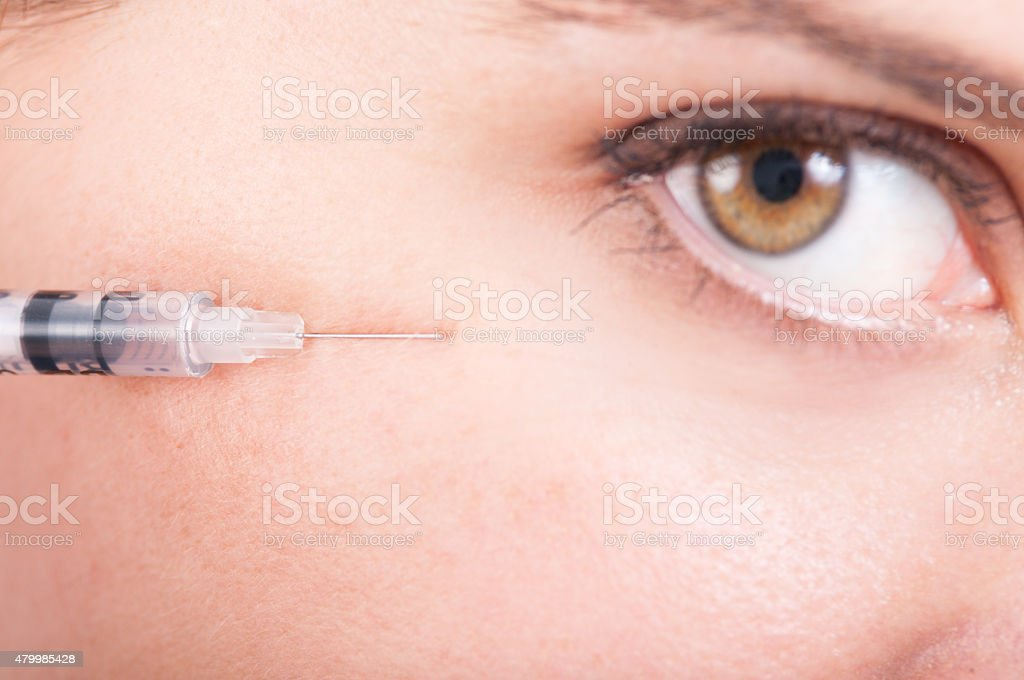 Botox for eyes wrinkle stock photo