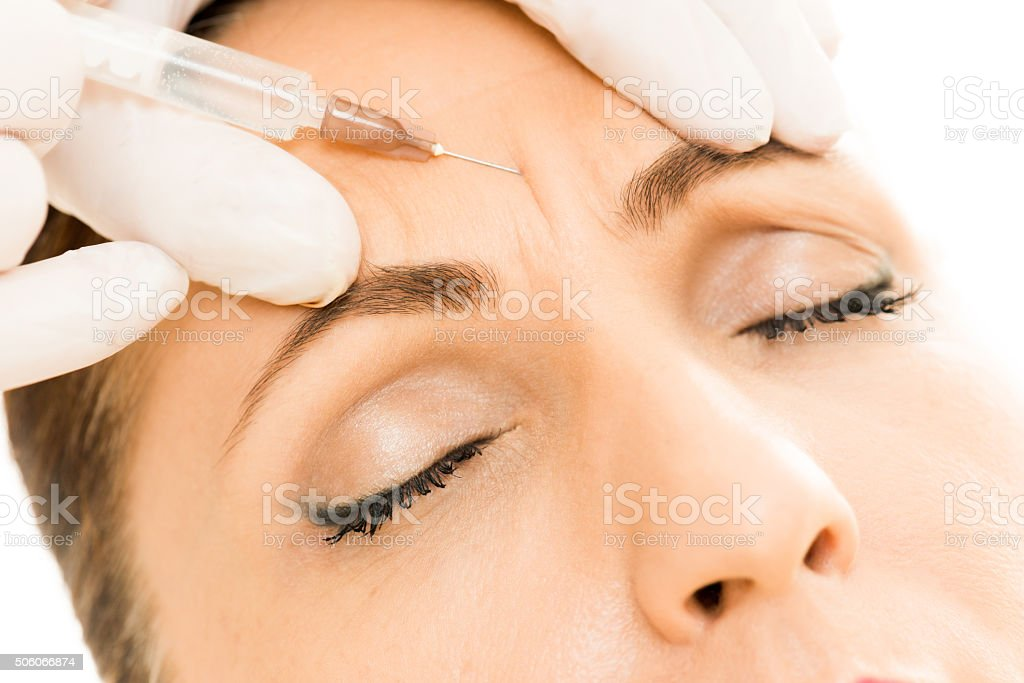 Botox in wrinkle stock photo