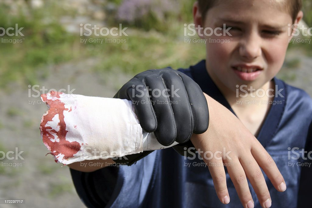 Boy holds Severed Arm Prop stock photo