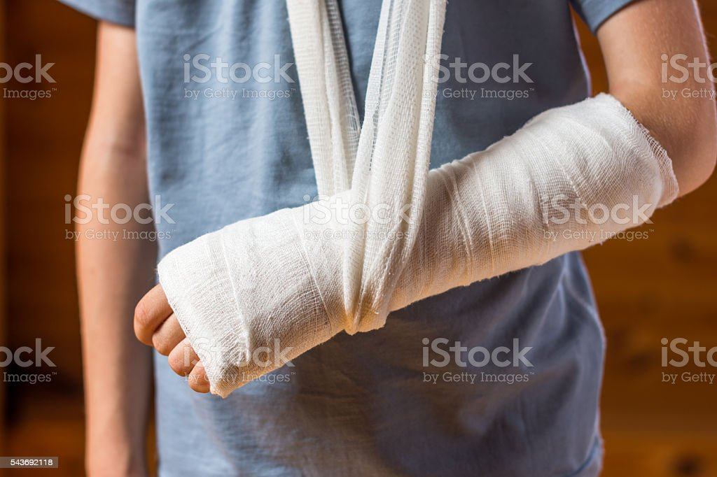 Boy with an arm in plaster stock photo