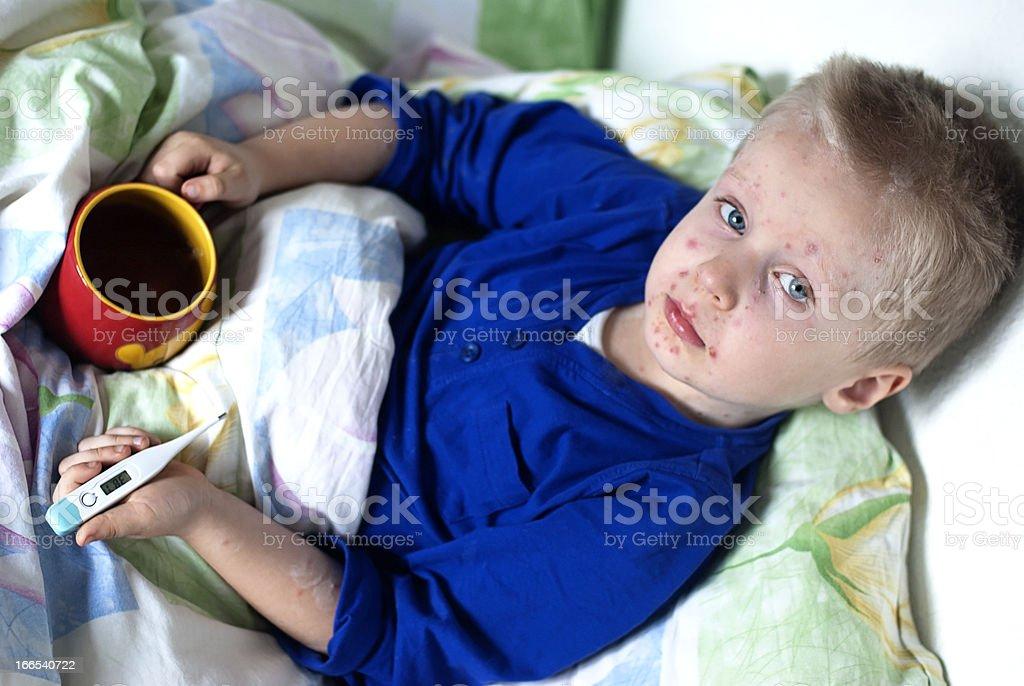 Boy with chickenpox stock photo