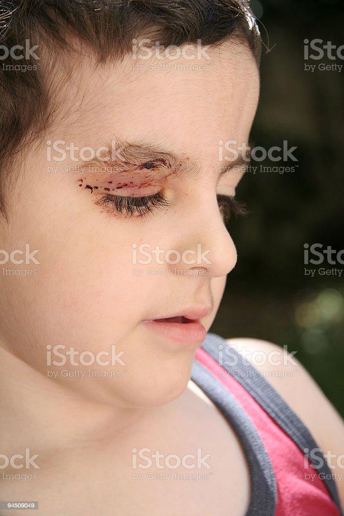 Boy with injury royalty-free stock photo