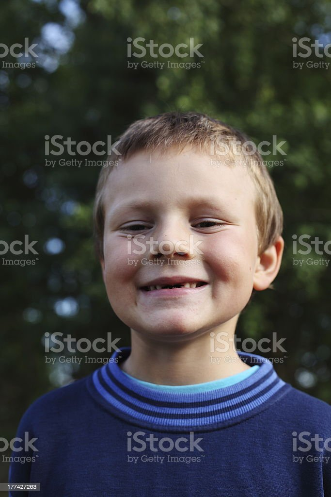 boy without teeth royalty-free stock photo