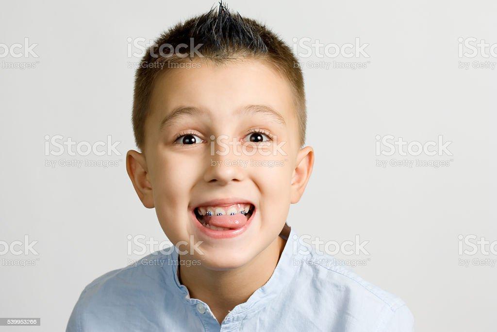 braces stock photo