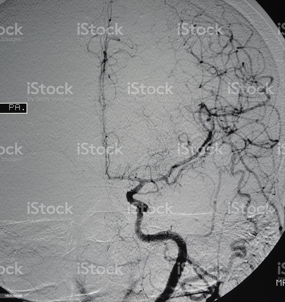 Brain angiography stock photo