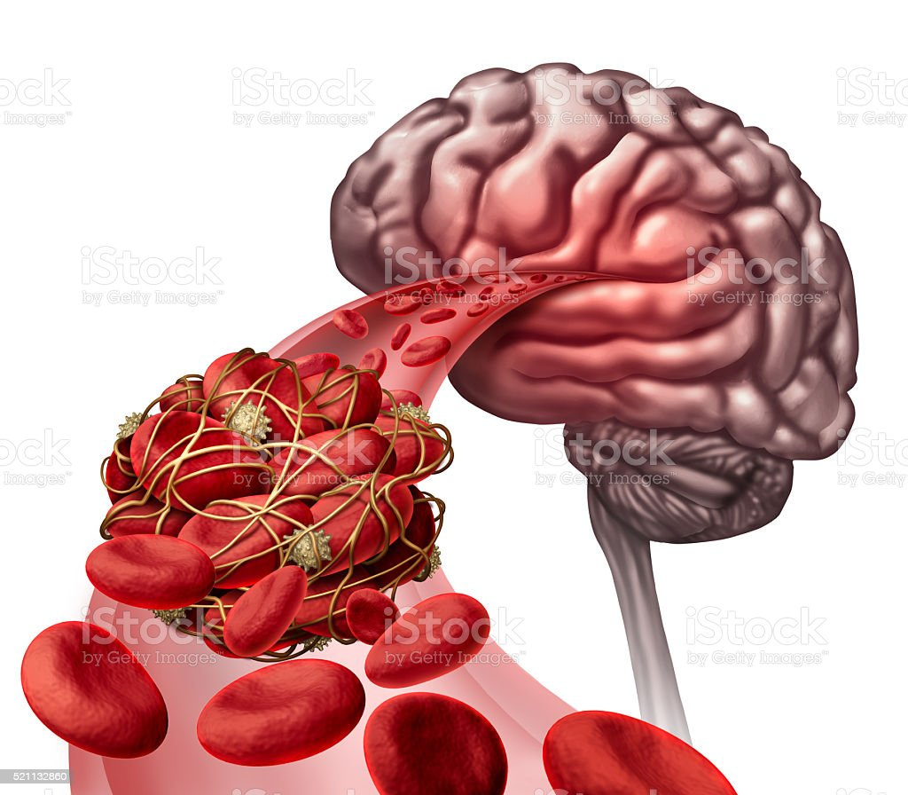 Brain Blood Clot stock photo