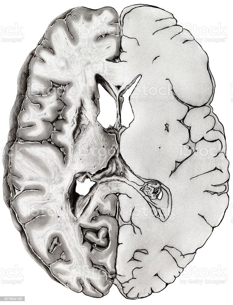 Brain - Cross Section stock photo