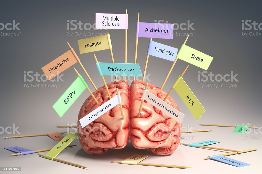 Brain Diseases stock photo