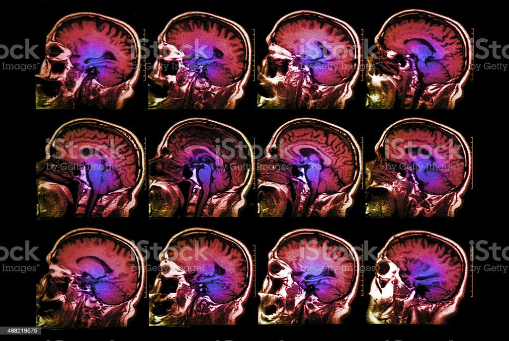 Brain head scan stock photo
