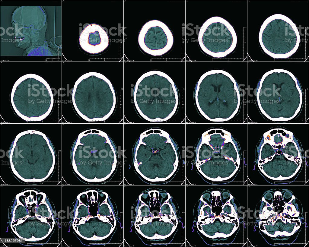 brain in color CT stock photo