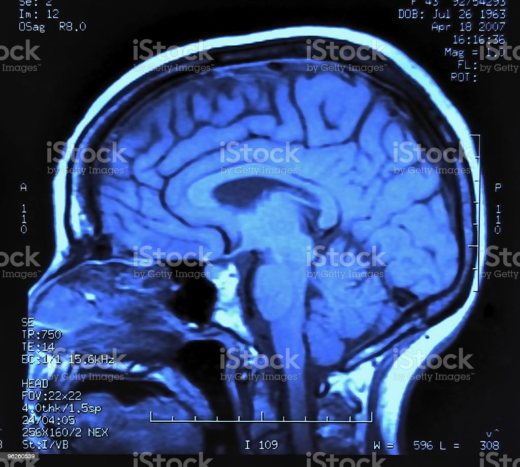 Brain MRI display in blacks and blues royalty-free stock photo