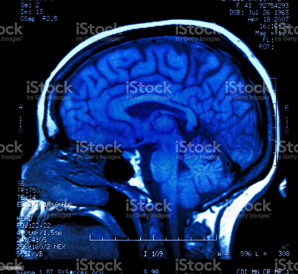 Brain MRI royalty-free stock photo