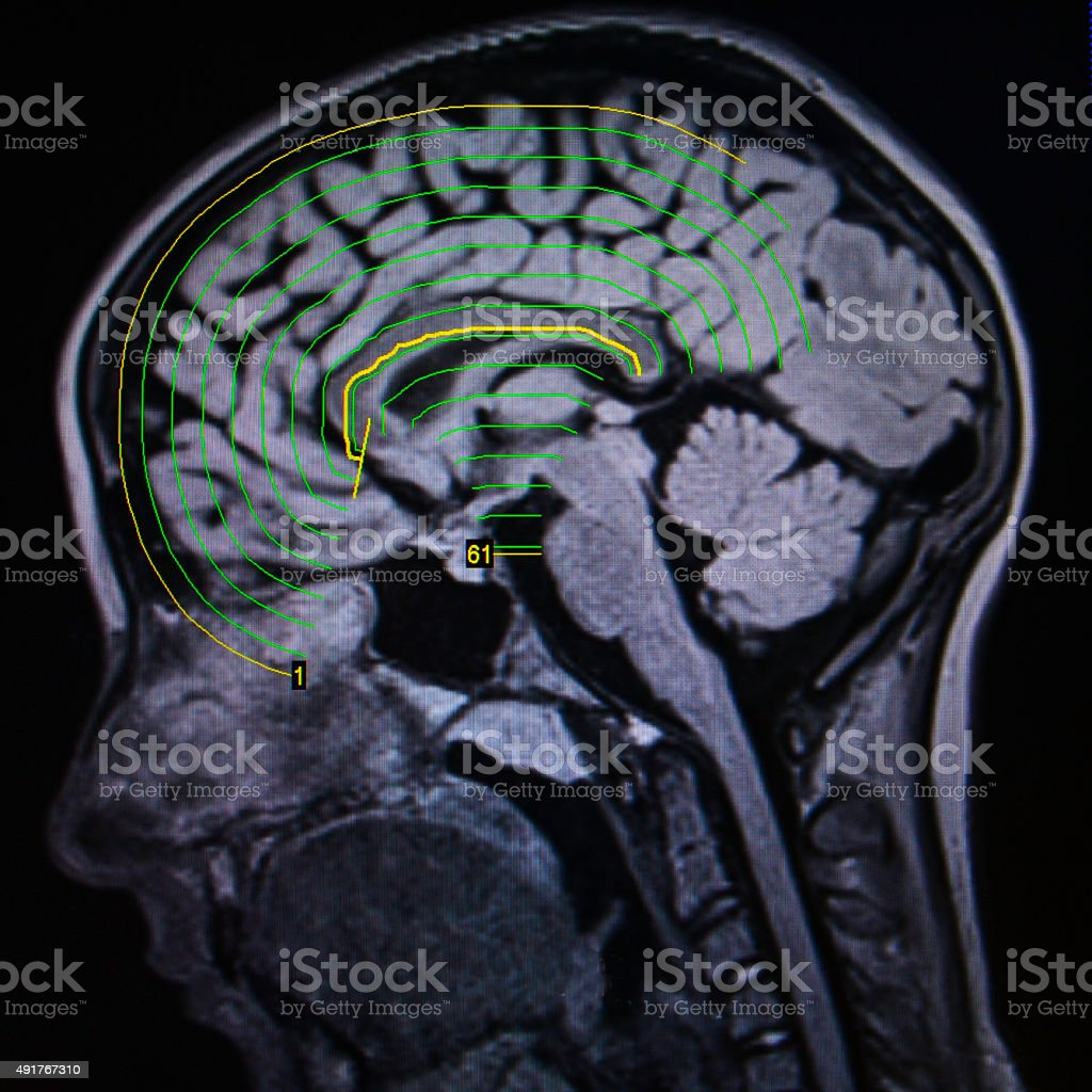 brain MRI stock photo