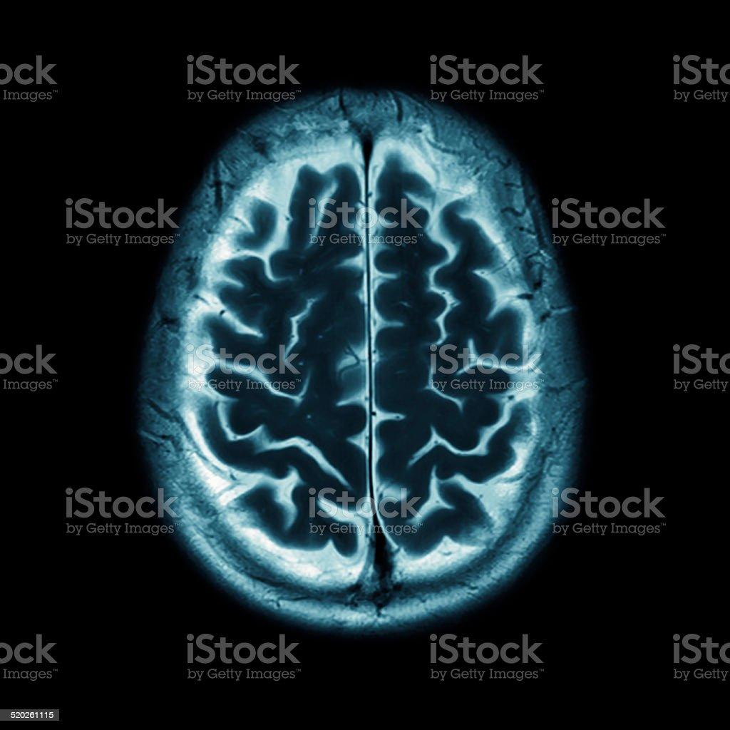 Brain MRI stock photo
