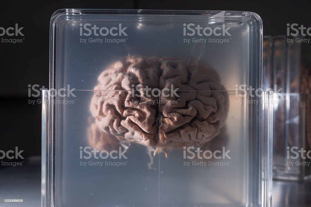Brain samples preserved in plastic slides stock photo