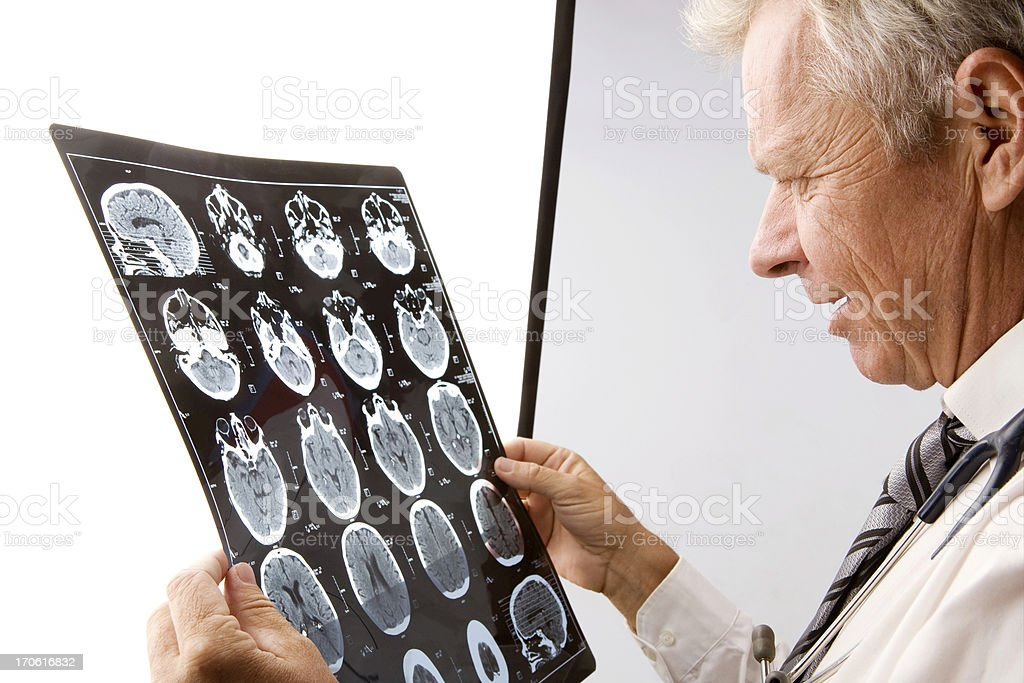 Brain scan exam royalty-free stock photo