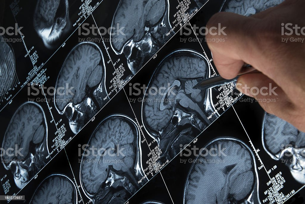 MRI Brain Scan of head and skull with hand pointing stock photo