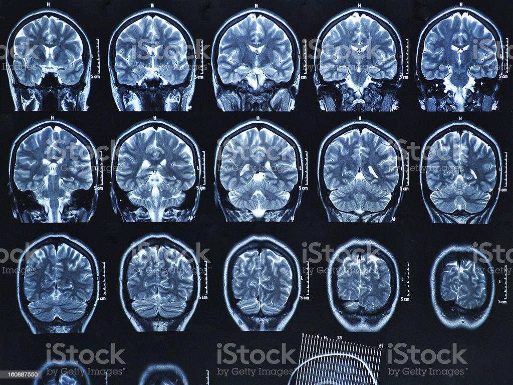 MRI Brain Scan royalty-free stock photo
