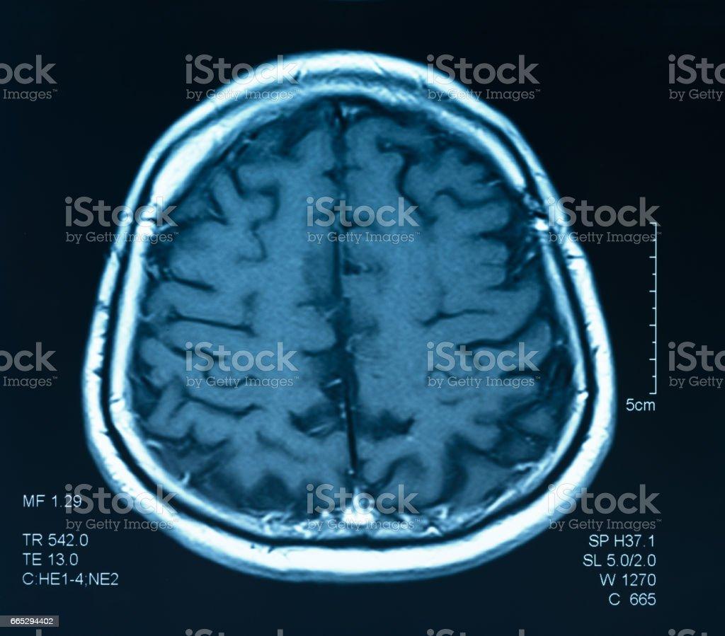 brain scan stock photo