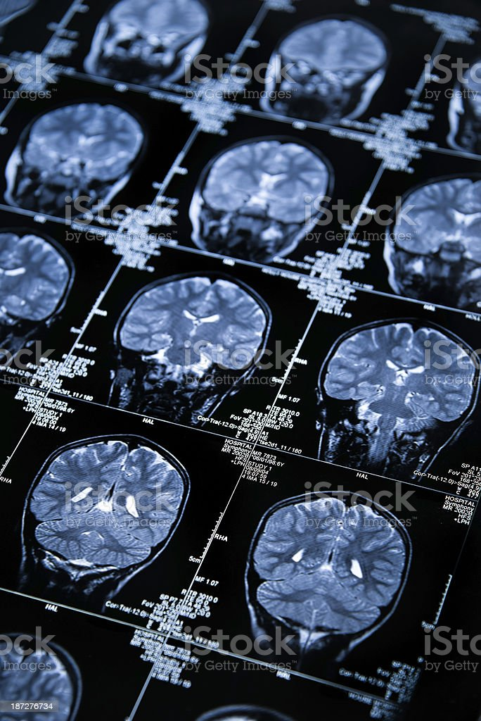 MRI Brain Scan showing multiple images of head and skull royalty-free stock photo