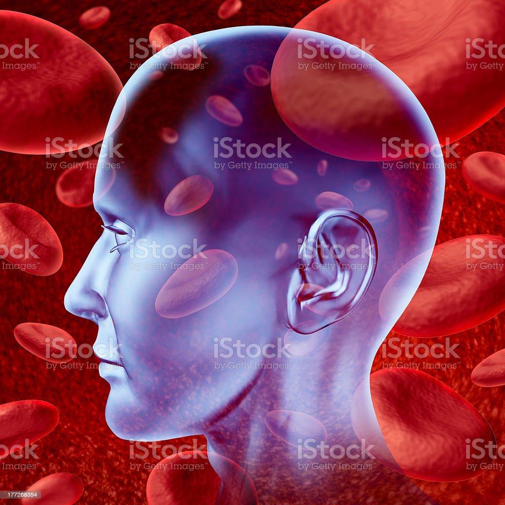 Brain stroke royalty-free stock photo