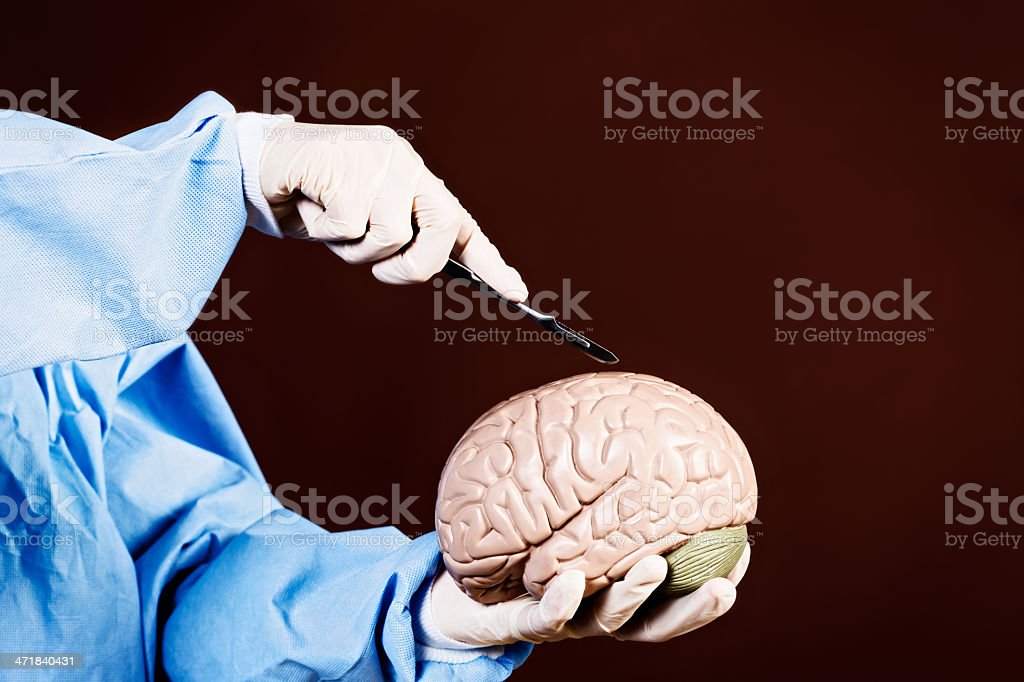 Brain surgery for beginners: gloved hands use scalpel on model royalty-free stock photo