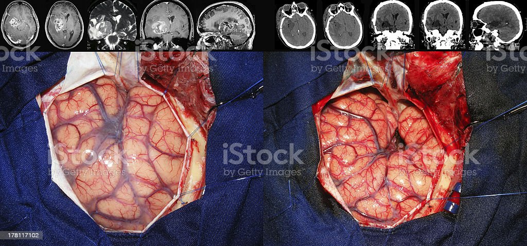 Brain tumor surgery (before and after) stock photo