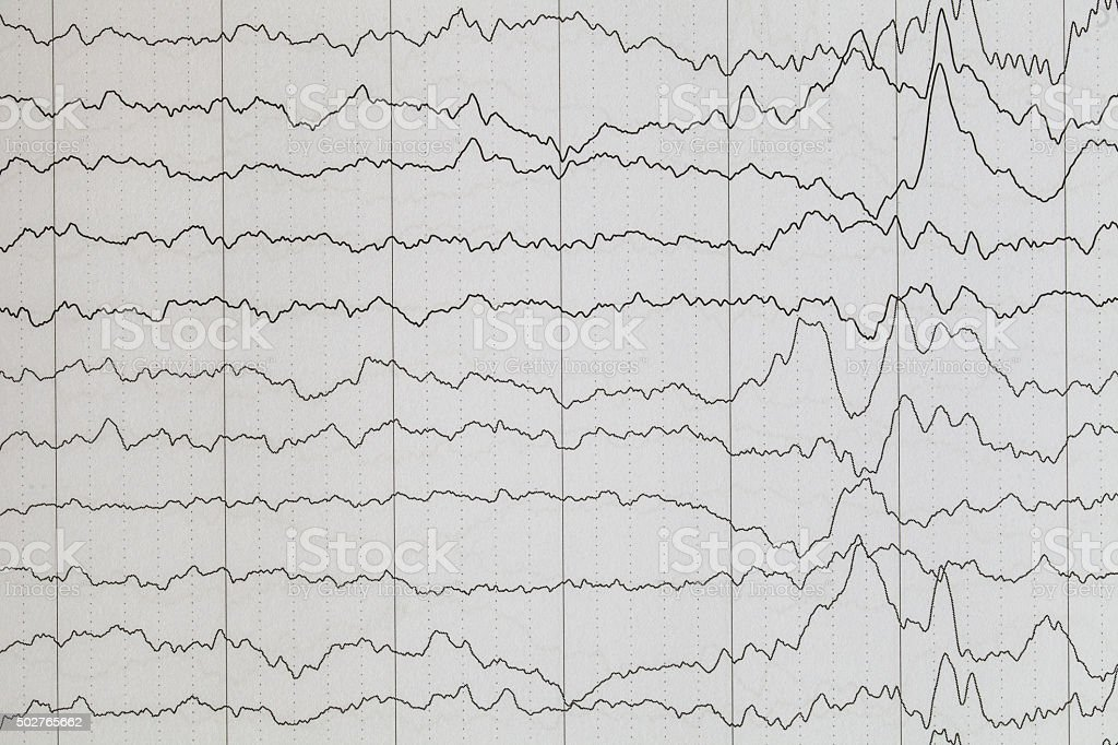 Brain wave stock photo