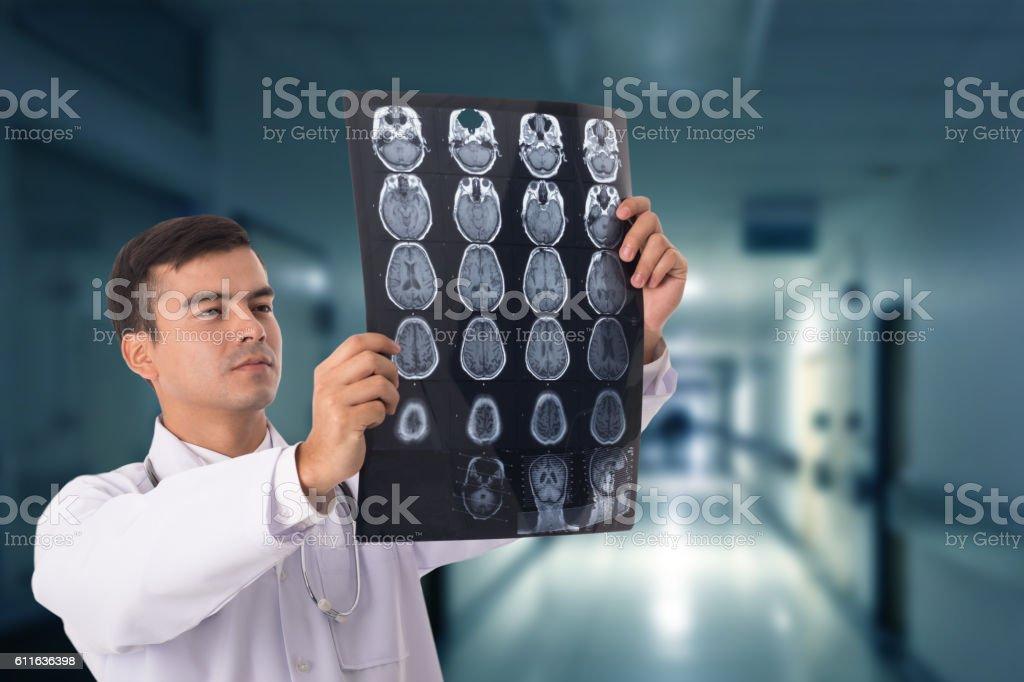 Brain xray film scan stock photo
