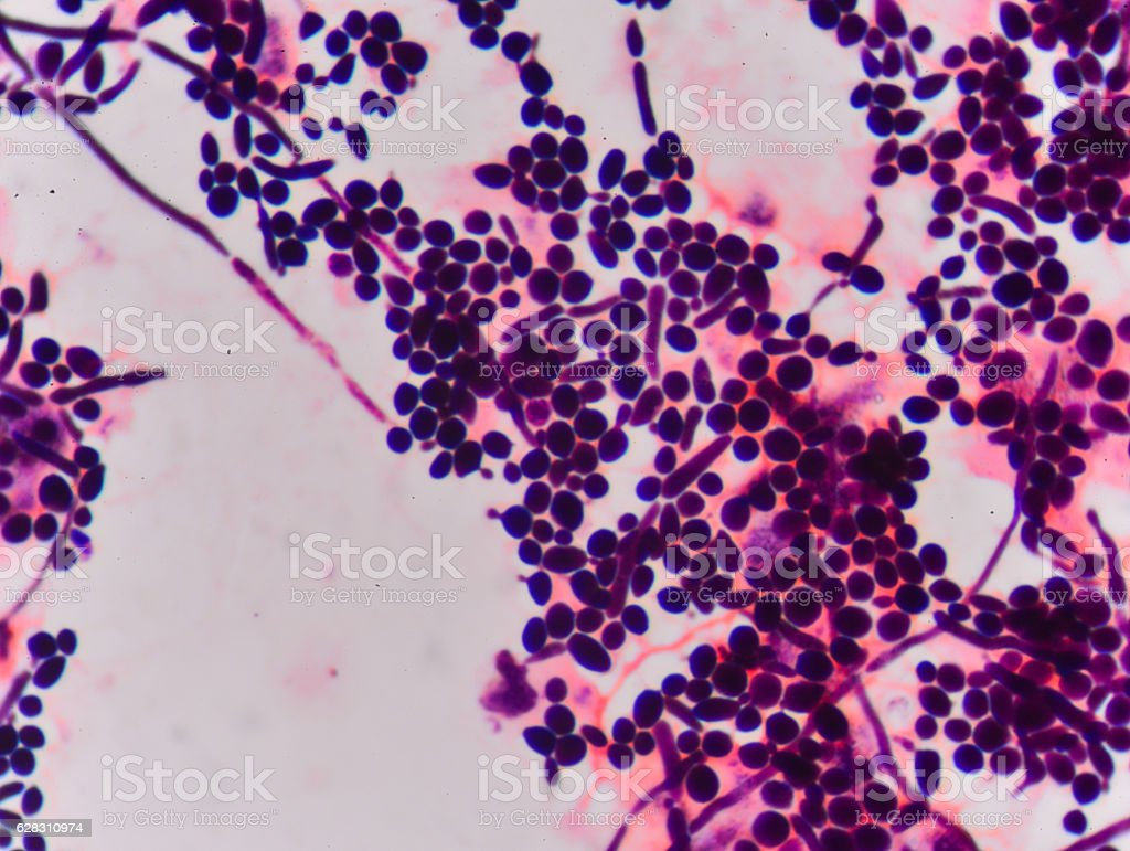 Branching budding yeast cells with pseudohyphae in  gram stain f stock photo