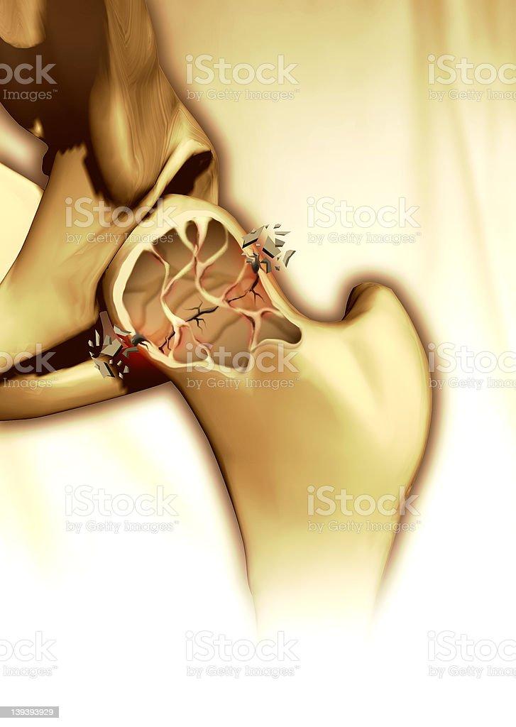 Breaking bone vector art illustration