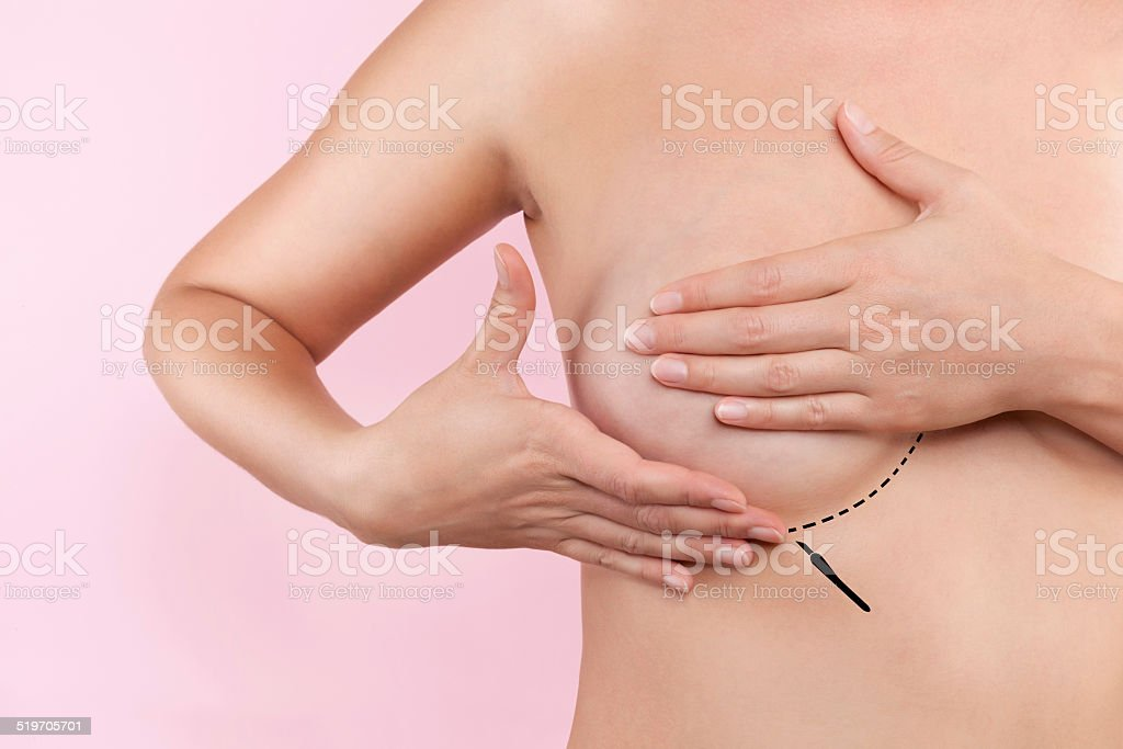 breast augmentation stock photo