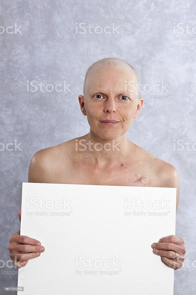 Breast cancer patient holding a white card. royalty-free stock photo